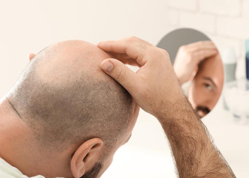 Greffe de cheveux pour homme : que choisir entre la FUT et la FUE ?